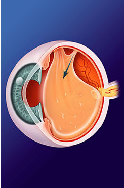 Retinal Tears, Vitreous Detachment and Floaters